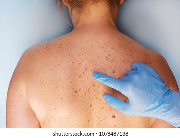 Dermatologist examining the patient in the clinic. problem skin with birthmarks. closeup