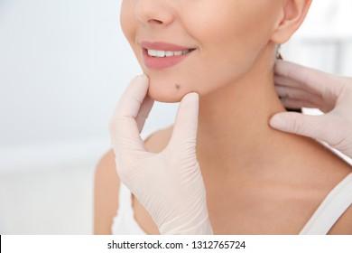 Dermatologist examining patient's birthmark in clinic, closeup
