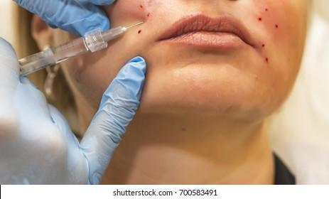 Dermatologist performs contour plastic to correction of nasolabial folds - selective focus