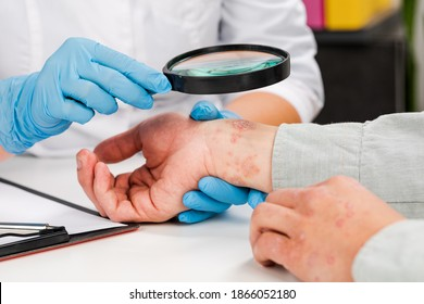 A dermatologist wearing gloves examines the skin of a sick patient. Examination and diagnosis of skin diseases-allergies, psoriasis, eczema, dermatitis. - Shutterstock ID 1866052180