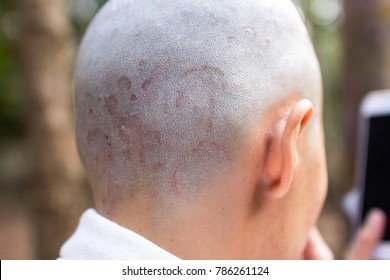 dermatology: Fungus on the scalp, Ring worm, Dry, scaly skin with red edges. Dermatophyte