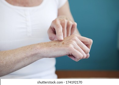 Dermatology, Symptomatology Elderly Person