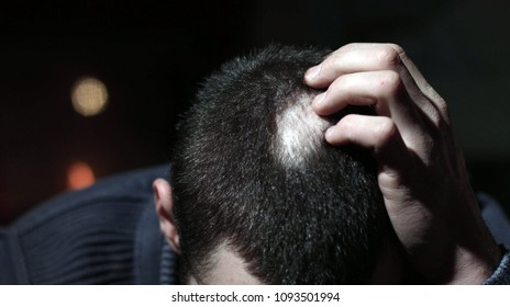 Desperate Young Man Touching His Bald Patches