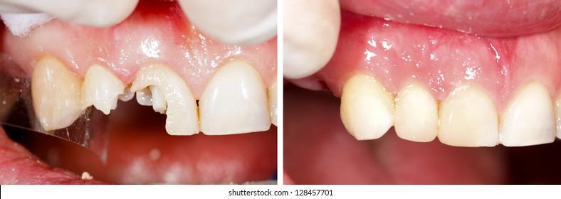 Destroyed teeth being restored - part of beforeafter series.