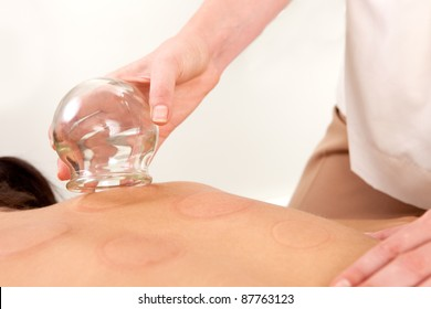 Detail of the hand of an acupuncture therapist removing a fire cupping bulb