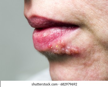 Detail of Herpes on lip of woman