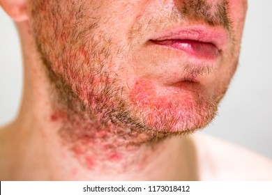 Detail of man's chin with seborrheic dermatitis in the beard area
