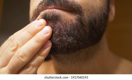 Detail des männlichen Kindes mit seborrheikem Ekzem im Bartbereich. Trockene Haut löst sich ab und verursacht Juckreiz und Schuppen.