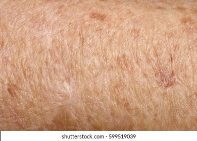 Detail of texture skin, senior woman,arm