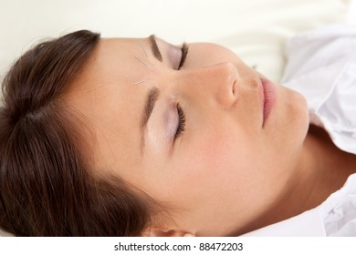 Detail of woman with acupuncture needles in face