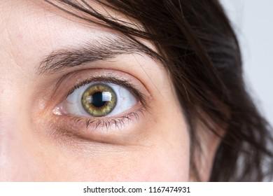 Detail of woman eye bags