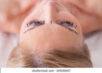 Detail Of A Woman  Receiving An Acupuncture Needle Therapy