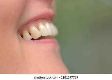Detail of woman teeth parodontose
