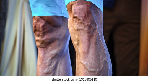 Detailed front view of cyclist sportsman legs with varicose and protruded veins