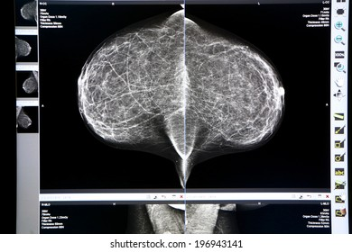 detailed image of X-ray mammogram