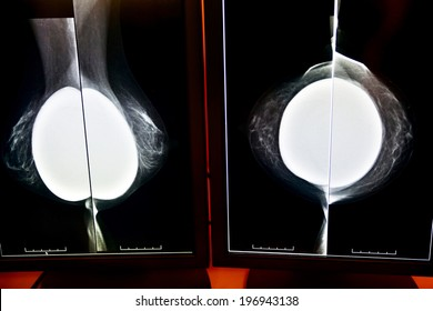 detailed image of X-ray mammogram and silicon implants
