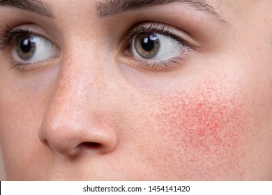 A detailed view on the soft cheek of a Caucasian woman in her early twenties. Blushing and redness is seen with superficial blood vessels, suggestive of rosacea.