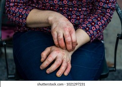 Detailed views of a young woman with dry and stressed red dyshidrotic eczema covered hands - Shutterstock ID 1021297231