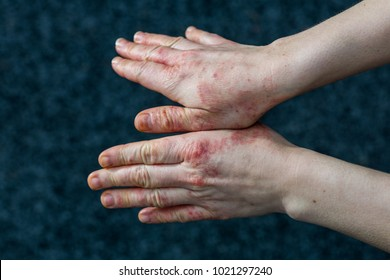 Detailed views of a young woman with dry and stressed red dyshidrotic eczema covered hands - Shutterstock ID 1021297240