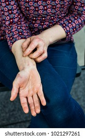 Detailed views of a young woman with dry and stressed red dyshidrotic eczema covered hands