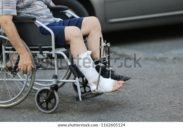 Details of a man's bandaged leg with metal orthopedic rods on a wheelchair at an emergency hospital