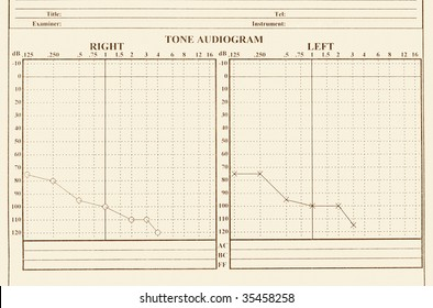 details of hearing medical chart showing, audiology