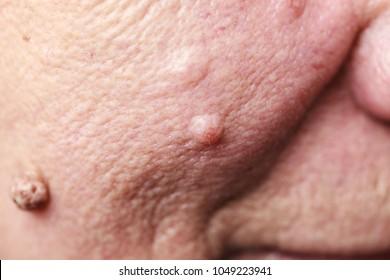 Details of senior woman face. Elderly pensioner female, dermal fibroma close up.