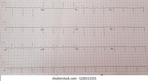 Dextrocardia. Normal sinus rhythm. Negative p in 1 and aVL.