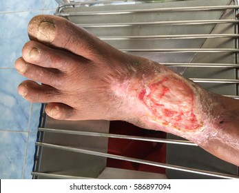 Diabetes neuropathy wound care