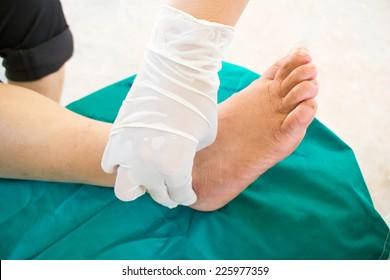 diabetic foot , neuropathy