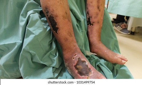 Diabetic Foot Ulcer with Chronic Limb Ischemia.