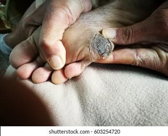 Diabetic Foot Ulcer of patient.