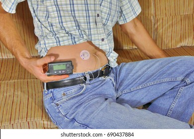 Diabetic with insulin pump in abdomen