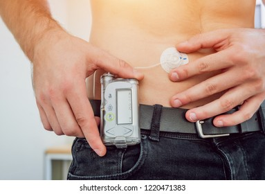 Diabetic man with an insulin pump connected in his abdomen and keeping the insulin pump on his belt. Diabetes concept.