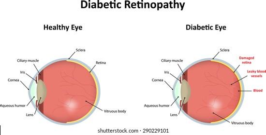 Eye Diagram Images Stock Photos Vectors Shutterstock