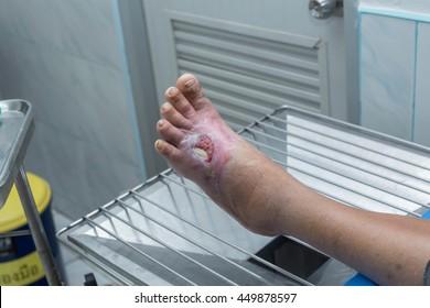 diabetic ulcer on left foot