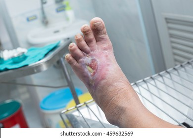 diabetic ulcer on left foot