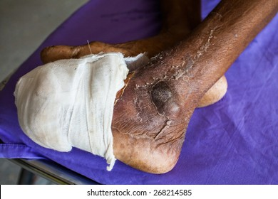 Diabetic ulcers at the foot