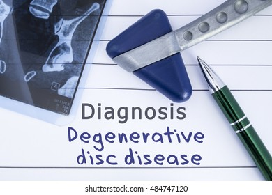 Diagnosis degenerative disc disease. Medical health history written with diagnosis of Lumbar disc disease, MRI image sacral spine and neurological hammer. Medical concept for Neurology, Neuroscience