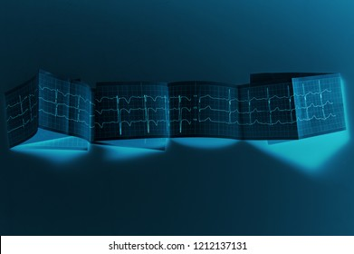 Сlinical diagnosis. Electrocardiography. Normal electrocardiogram. Blue lights. Unusual design, futuristic style.