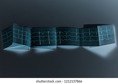 Сlinical diagnosis. Electrocardiography. Normal electrocardiogram with mild arrhythmia. Unusual design, futuristic style.