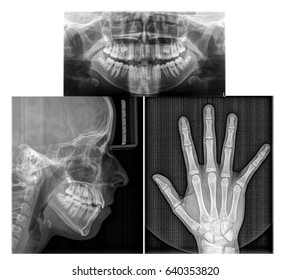Diagnosis for orthodontoc treatment including hand skeleton maturity