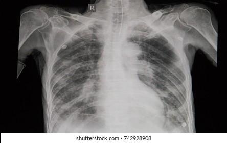 Pulmonary Edema Images, Stock Photos & Vectors | Shutterstock