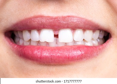 Diastema between tooth. Spacing between front teeth