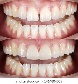Diastema closures by direct composite filling