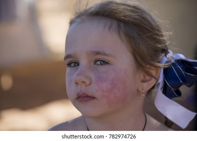Diathesis Red Spots On Skin Child Stock Photo (Edit Now