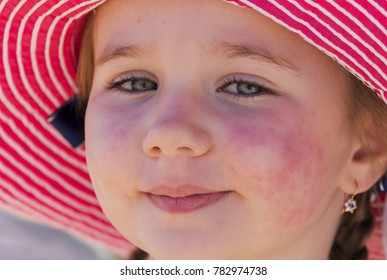 diathesis, red spots on the skin of a child