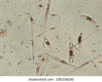 Diatoms under microscopic view