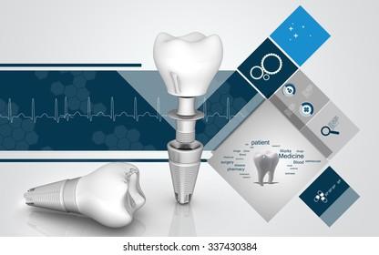 Digital illustration of  Dental implant in colour  background