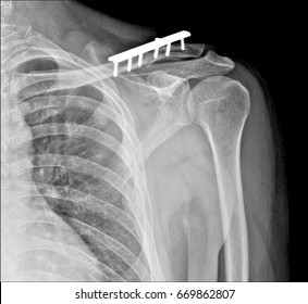 digital x-ray computer image of shoulder in operation room,Broken clavicle bone,metal plate in the shoulder,Shoulder joint replacement orthopedic titanium metal Traaumatology ball and socket implant